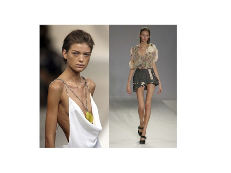 Skinny Models Are Out Of Fashion